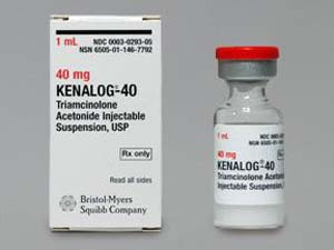 periocular injection steroid
