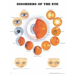"Disorders Of The Eye Diagram - 20"" x 26"""