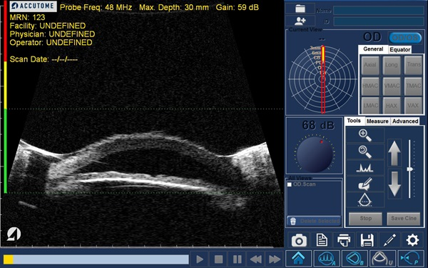 mrn scan
